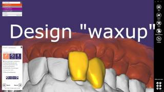 Digital Waxup Modellation