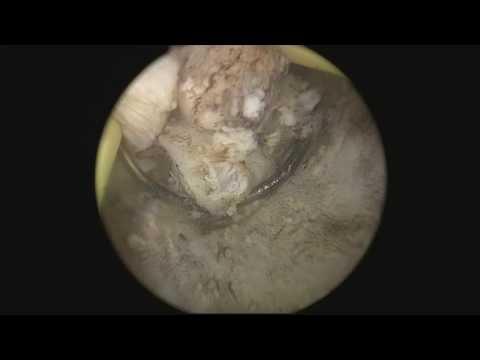 Diagnose von Prostata-Verkalkung