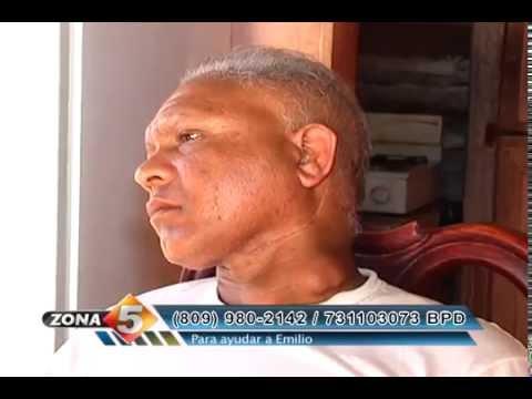 La psoriasis sobre la persona de la casa