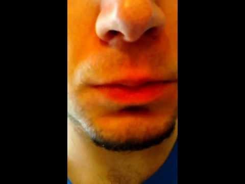 Trattamento di thrombophlebitis di una fotografia