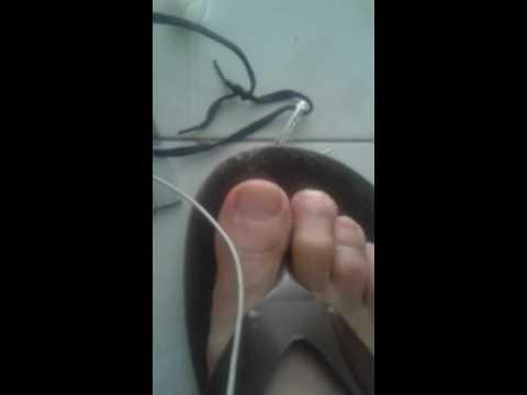 Які Los indicios del hongo en los pies