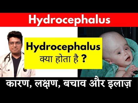 Hydrocephalus látás. Hydrocephalus - Hírek -