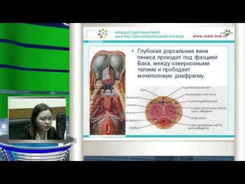 Киста предстательной железы ее лечение