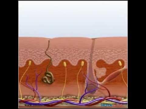 Die Pigmentflecke und die Behandlung