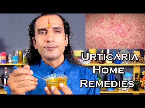 Video Urticaria Treatment With Home Remedies by Sachin Goyal