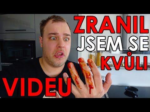 ZRANIL JSEM SE KVŮLI VIDEU - WEEK #154