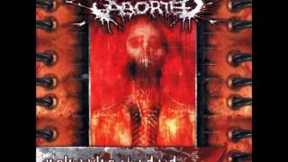 Aborted- Engineering The Dead