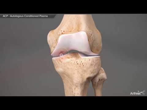 Gegenanzeigen in Osteochondrose der Lendenwirbelsäule Massage