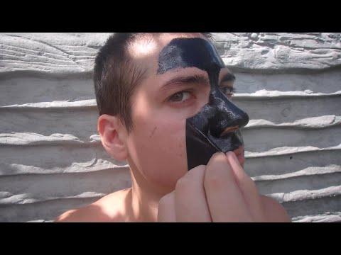 Лазерная шлифовка лица эрбиевым лазером отзывы
