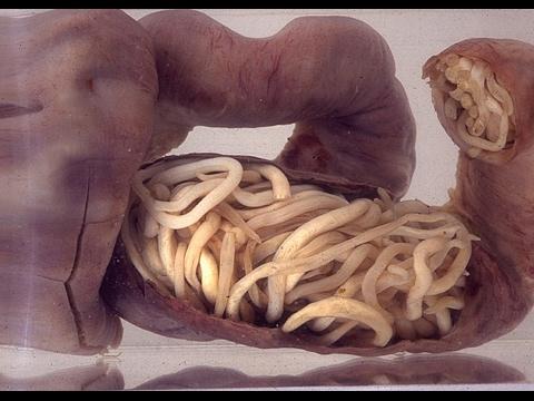 Elena Malysheva soda mula sa parasites
