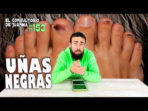 El hongo de las uñas en los pies los síntomas de la foto