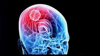 Killing Cancer - New Brain Cancer Treatment Targets Tumors