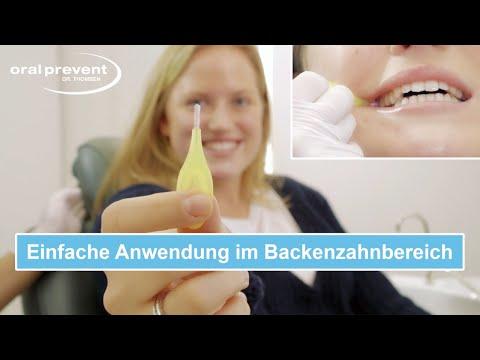 Interdentalbürsten Anwendung im Backenzahnbereich ►Richtige Reinigung der hinteren Zahnzwischenräume