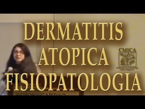 Por que ungüentos más vale curar la psoriasis en