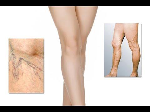 Les centres fédéraux cordialement la chirurgie vasculeuse rossii