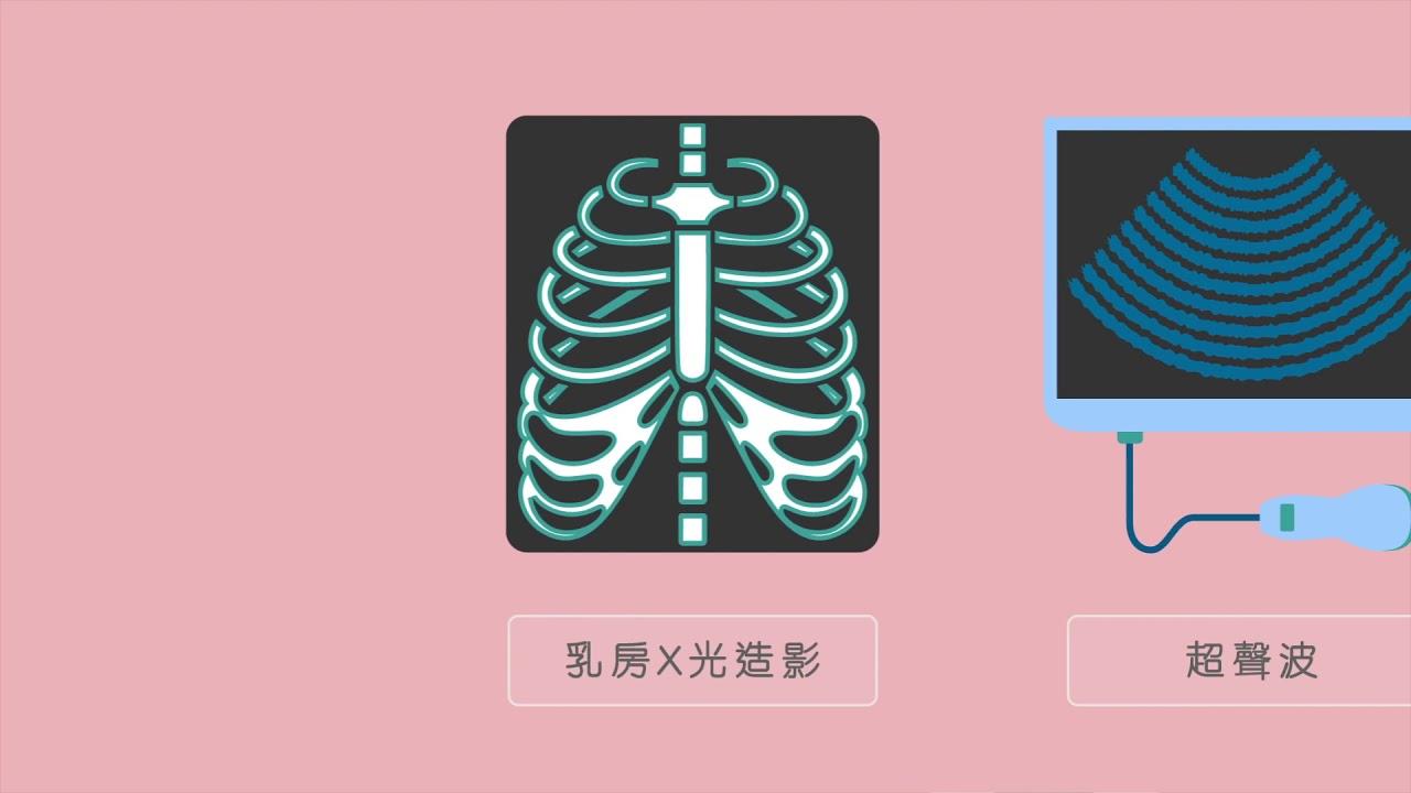 HKAI 乳癌簡介影片
