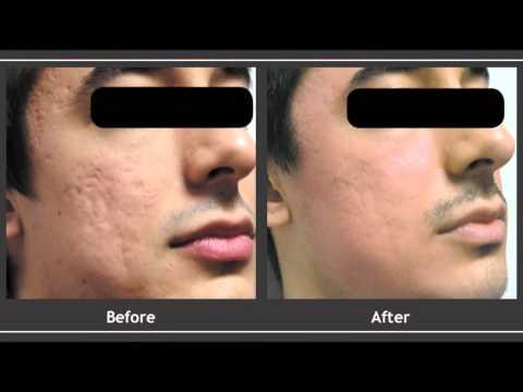 Garnier face mask 3 in 1