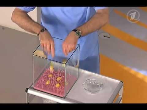 Агрессивный рак предстательной железы