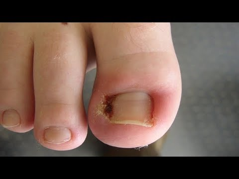 Diabetische Fußchirurgie