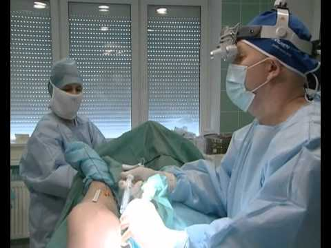 Лечение варикоза . Радиочастотная облитерация (РЧО).avi