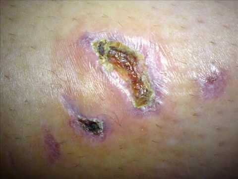 Le traitement biologique du psoriasis