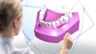 ORTODONCIA DIGITAL SEVILLA - Clínica de Ortodoncia Pilar Martín Balbuena
