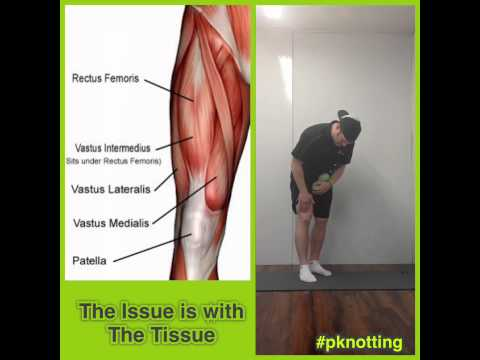 Video P-Knotting for Quadricep Tendonitis