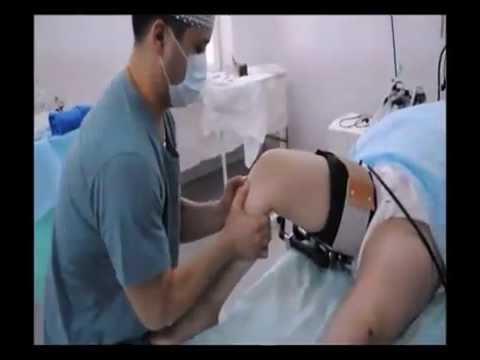Разрыв передней крестообразной связки (ПКС)-операция