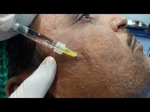 acne scar treatment by filler lahore pakistan/ Dr Amin Yousaf Plastic Surgeon