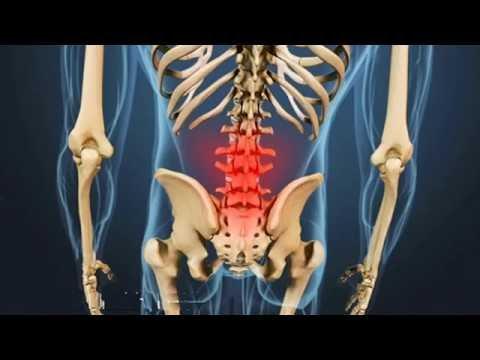 La prevenzione del mal di schiena un paio di semplici esercizi