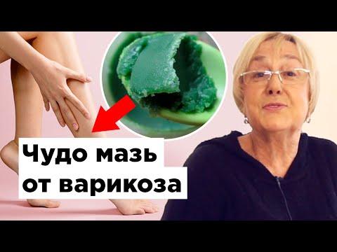 Ce medicament este mai eficient în varicoză
