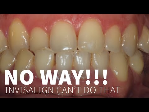 Invisalign Can't Do That......