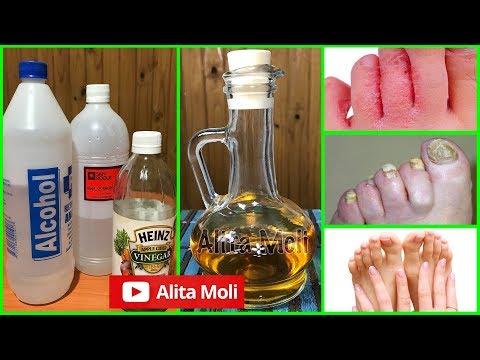 El tratamiento de la alergia al gel para las uñas