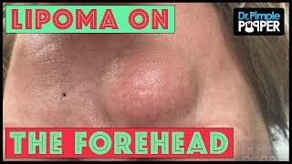 A Forehead Egg Yolk Lipoma