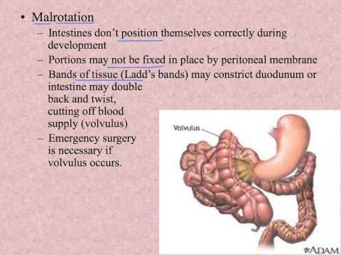 Enterobiosis anumang bulate