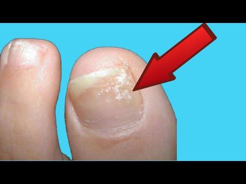 Como curar el síndrome de las uñas verdes