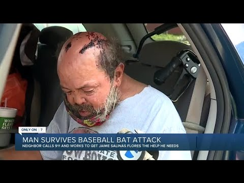 WTF YALL DOING: Senior citizen robbed, beaten with aluminum baseball bat