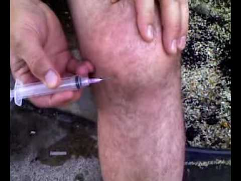Video Water on the Knee Self-Removal