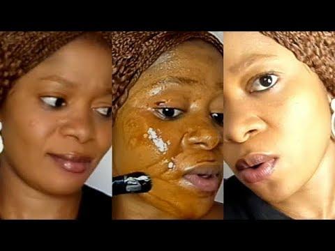Pagpaputi cream para sa freckles review