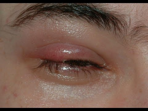 Video How to Get Rid of a Stye Overnight