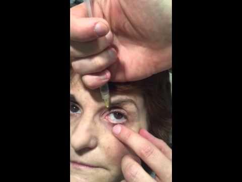 Anti-Aging cream para sa eye contour