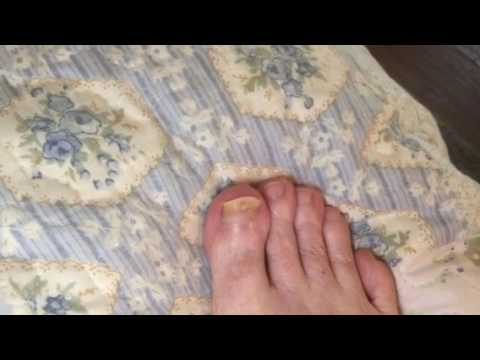 Ingrown toenail paggamot staple