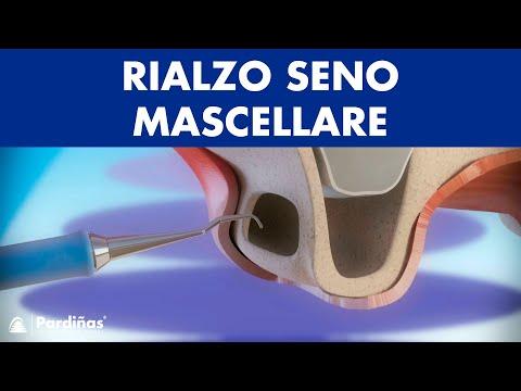 Metodi nazionali di cura di emorroidi dopo la consegna