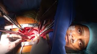 Awake cardiac surgery by Dr Nisarga (Full HD)