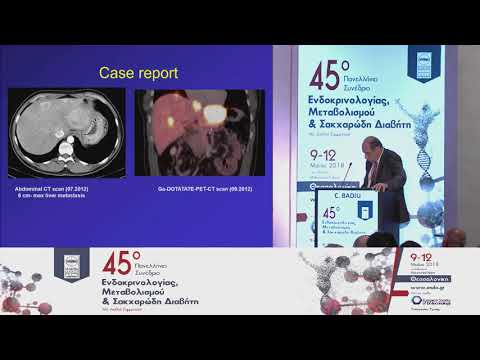 C. Badiu - Neuroendocrine tumors: New guidelines