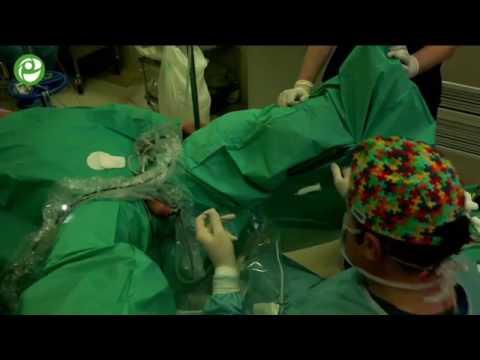Аденома простаты биопсия как делают