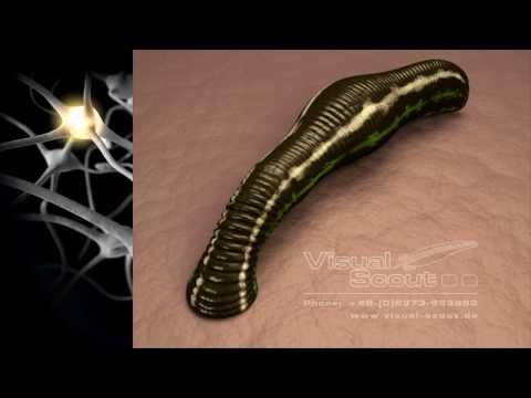 Warum wund Bauch von Prostata-Adenom