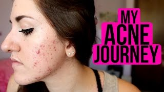 My Acne Journey (Proactiv/Epiduo/What Worked & What Didn't) | tewsimple