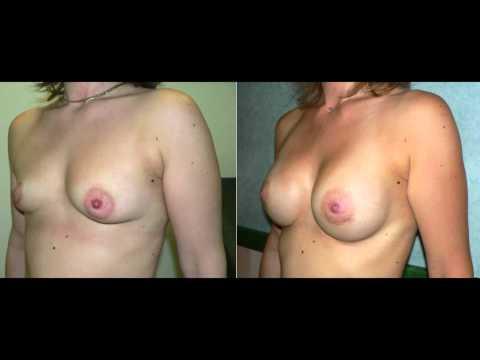 Laugmentation de la poitrine la sortie