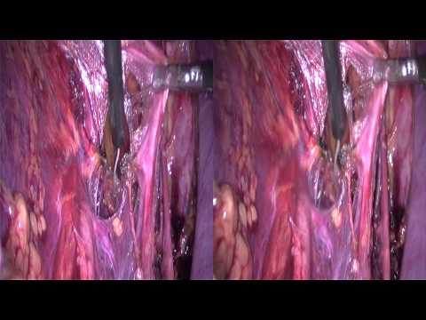 Behandlung von Prostatakrebs bei männlichen Ärzten